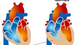 Heart disease - Wikimedia commons - Photo: Mariana Ruiz Villarreal